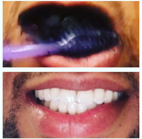 Brushing Teeth with Charcoal Toothpaste